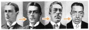 Акромегалия - лицеви промени